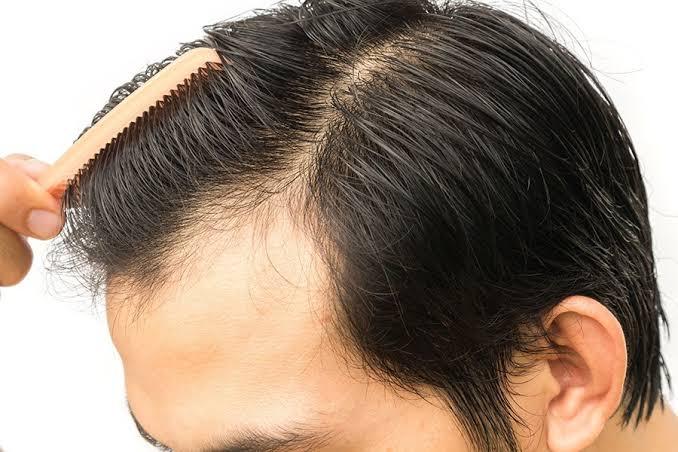 hair-surgery